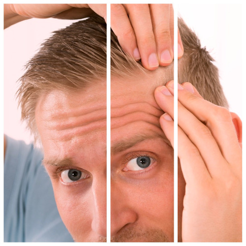 Los tipos de alopecia se diferencian entre cicatriciales y no cicatriciales.