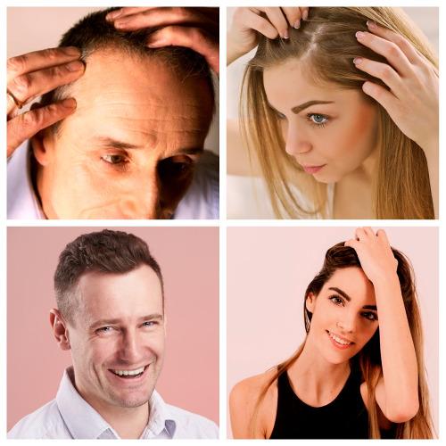 Todos los tipos de alopecia tienen diferentes causas y síntomas que deben ser estudiados antes de intentar poner una solución.