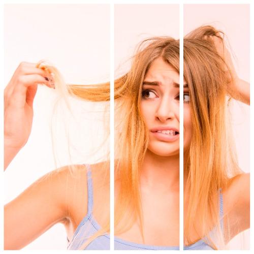 La androgenética es el tipo de alopecia que más sufren hombres y mujeres.