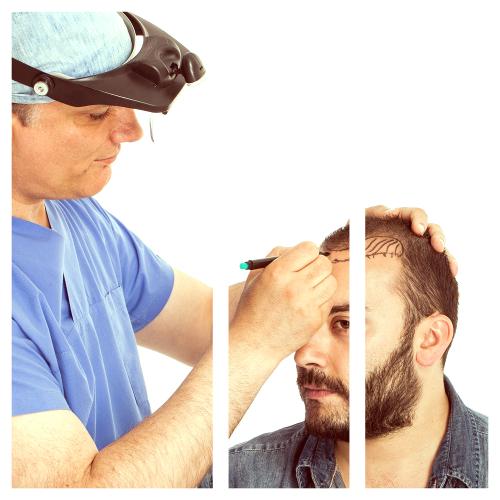 Las mejores clínicas capilares de Granada están para solucionarte los problemas de alopecia