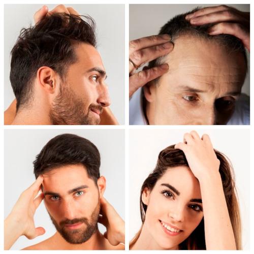 En las mejores clínicas capilares de Gijón podrán ayudarte a luchar contra la alopecia